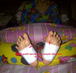 koyo detox foot patch, mengatasi diabetes